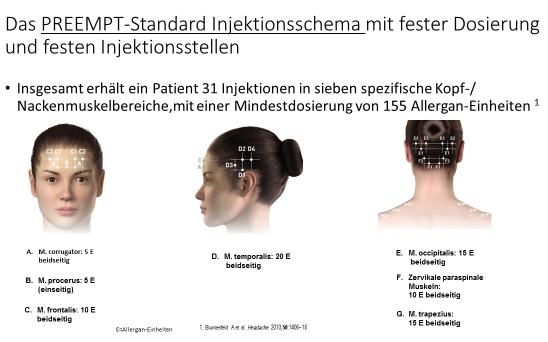 PREEMPT-Standard-Imjektionsschema