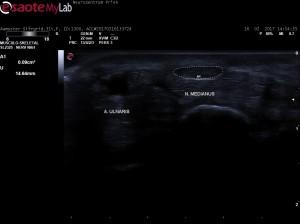Nervensonographie: N. medianus im Querschnitt (Karpaltunnel)