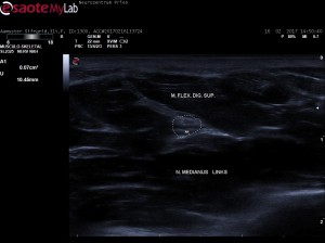Nervensonographie: N. medianus im Querschnitt (Unterarm)